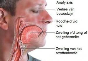 Anafylaxis - allergische reactie