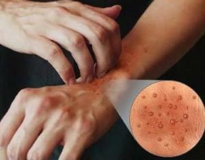 Contacteczeem aan de handen