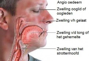 Angio oedeem quincke oedeem